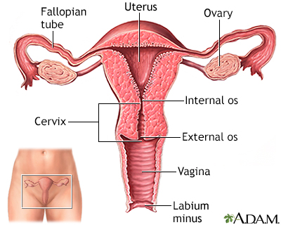 Uterus breast to uterine metastasis