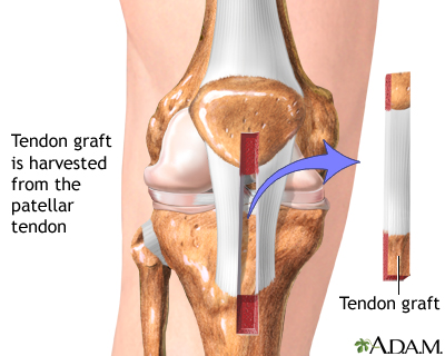 Knee Acl Tear Diagram Introduction To Electrical Wiring Diagrams