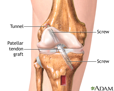Anterior Cruciate Ligament Acl Injury