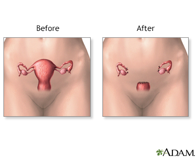 Painful sex after hysterectomy
