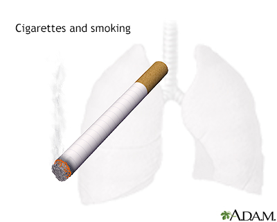 In-Depth Reports - Smoking