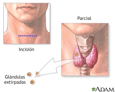 Extirpación de las glándulas paratiroideas