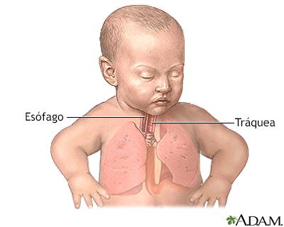 Atresia esofágica