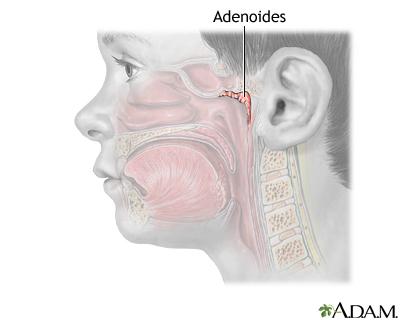 Extirpación de adenoides