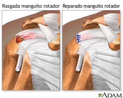 MANGUITO DELOS ROTADORES ANATOMIA PDF
