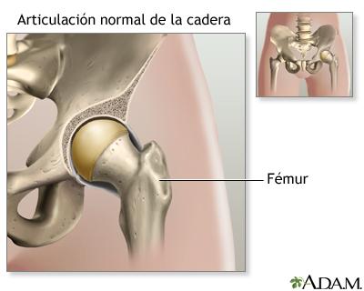 Reemplazo de la articulación de la cadera