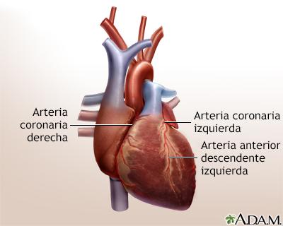 Cirugía de revascularización coronaria